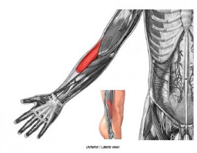 前腕橈骨筋